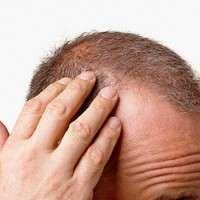 Saç Dökülmesinin En Önemli 5 Nedeni ve Çözüm Önerileri