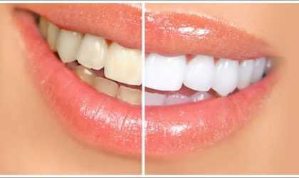 Diş Beyazlatma Yöntemleri Nelerdir? (Video)